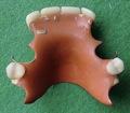 Zahnprothese (1)